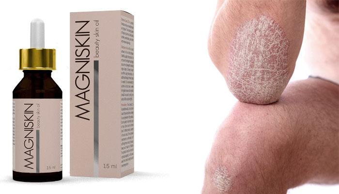 Magniskin od łuszczycy: оdzyskaj ładną i gładką skórę szybko, łatwo i oszczędnie