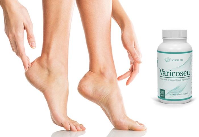 Varicosen od żylaków: zapewni piękno i zdrowie twoich stóp!