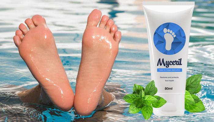 Myceril przeciwko grzybicy: zadbaj o zdrowie swoich stóp!