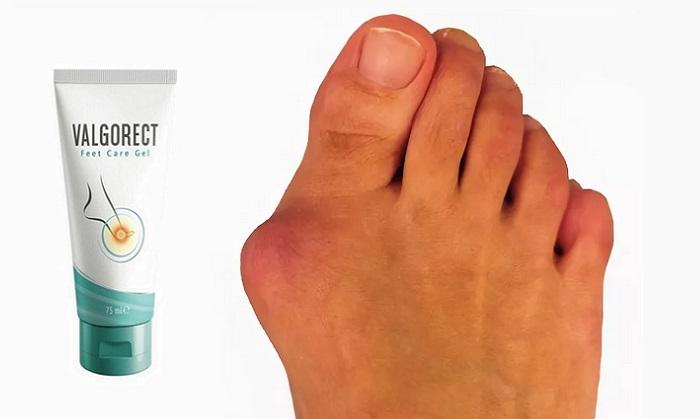 Valgorect od deformacji stopy: pozbędzie się guzków na nogach bez operacji!