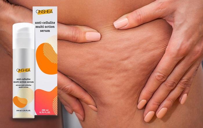 ONSHEA krem na cellulit: skorzystaj z dobrodziejstw naturalnych składników!