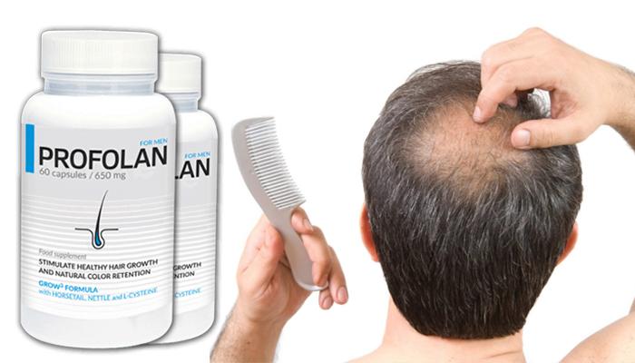Profolan na porost włosów: skutecznie stymuluje porost włosów, a także utrwala ich naturalny kolor